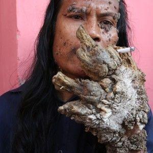 Дмитро Комаров у гостях у людини-дерева, руки й ноги якої перетворилися на коріння