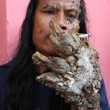 Помер герой програми «Світ навиворіт» людина-дерево